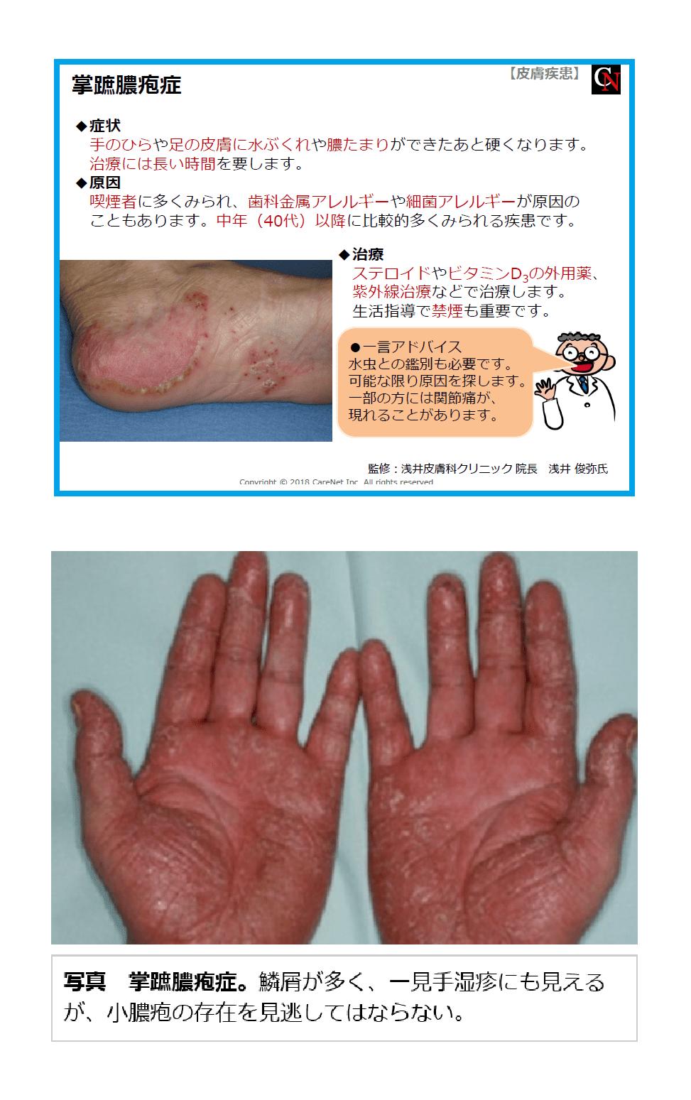 蹠 症 掌 膿疱